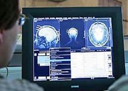 Сканирование мозга Иллюстрация cnn